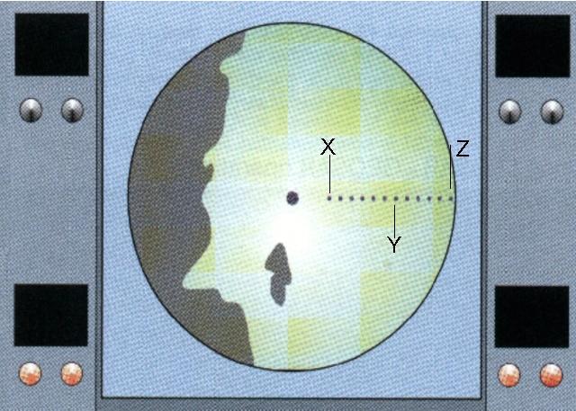 SART zichtbaar op Radar